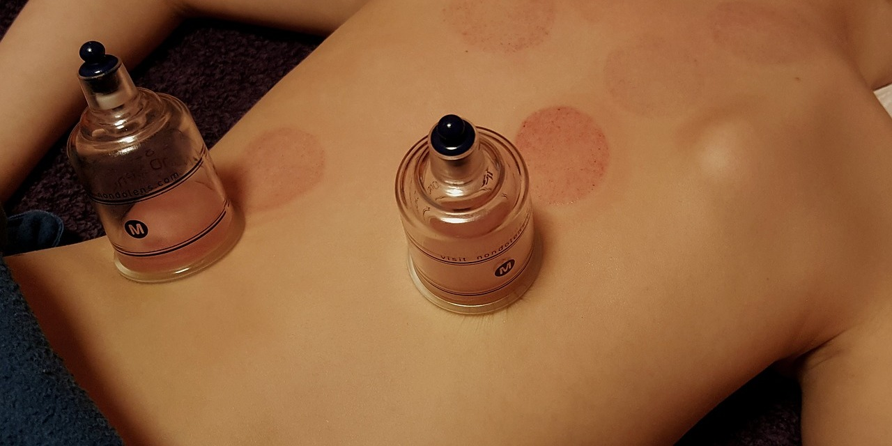 Thai Cupping Massage Therapy and Training in Thailand