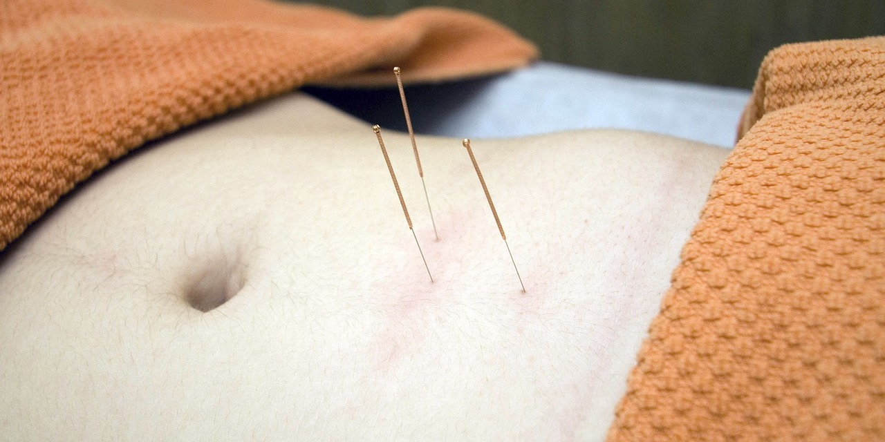 Chinese Acupuncture for Sexual and Genital healing