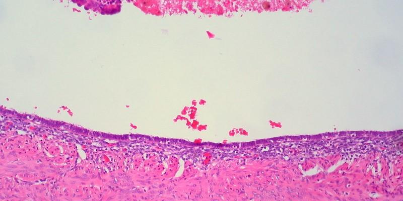 Endometriosis, Infertility and Treatments