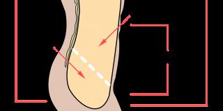 abdominopelvic-cavity